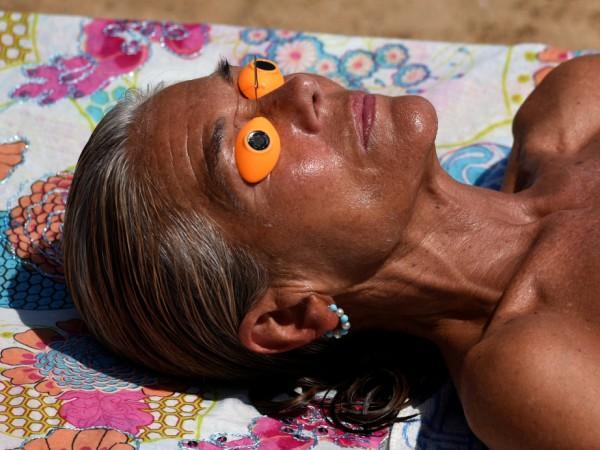 Кожата през лятото е изложена на вредните слънчеви лъчи. Зачервяване,