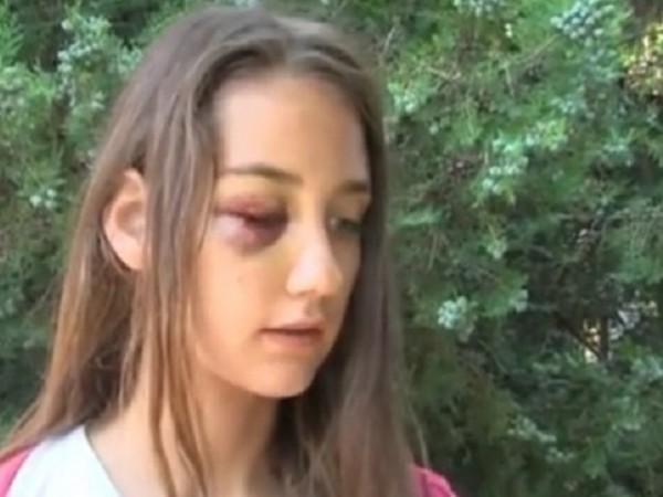 Снимка: Мъжът, нападал жени в Несебър– чувал гласове, командвали го