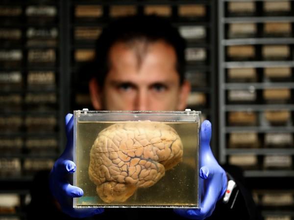 Резултатите от най-широкомащабното извършвано някога изследване върху функционирането на мозъка