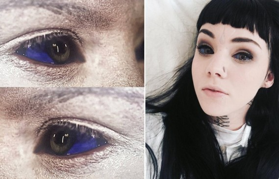 Татуировки на очите – новият опасен хит!